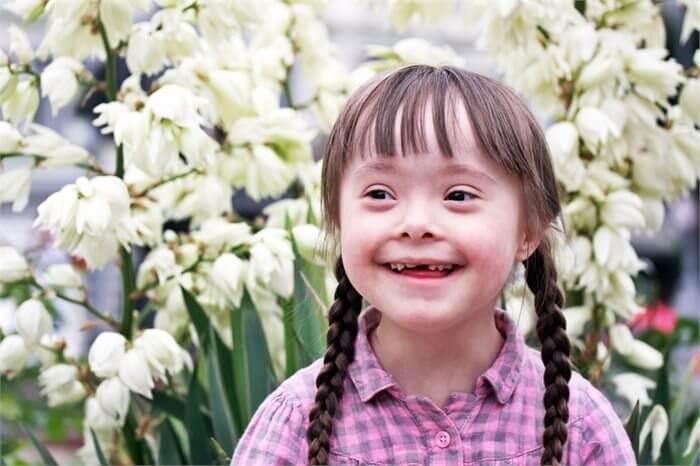 לקויות שפה בקרב ילדים עם תסמונת דאון